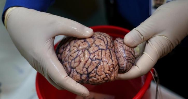 फेसबुकले मस्तिष्क पढ्न सक्ने र सोचाइ थाहा पाउने प्रविधि बनाउँदै